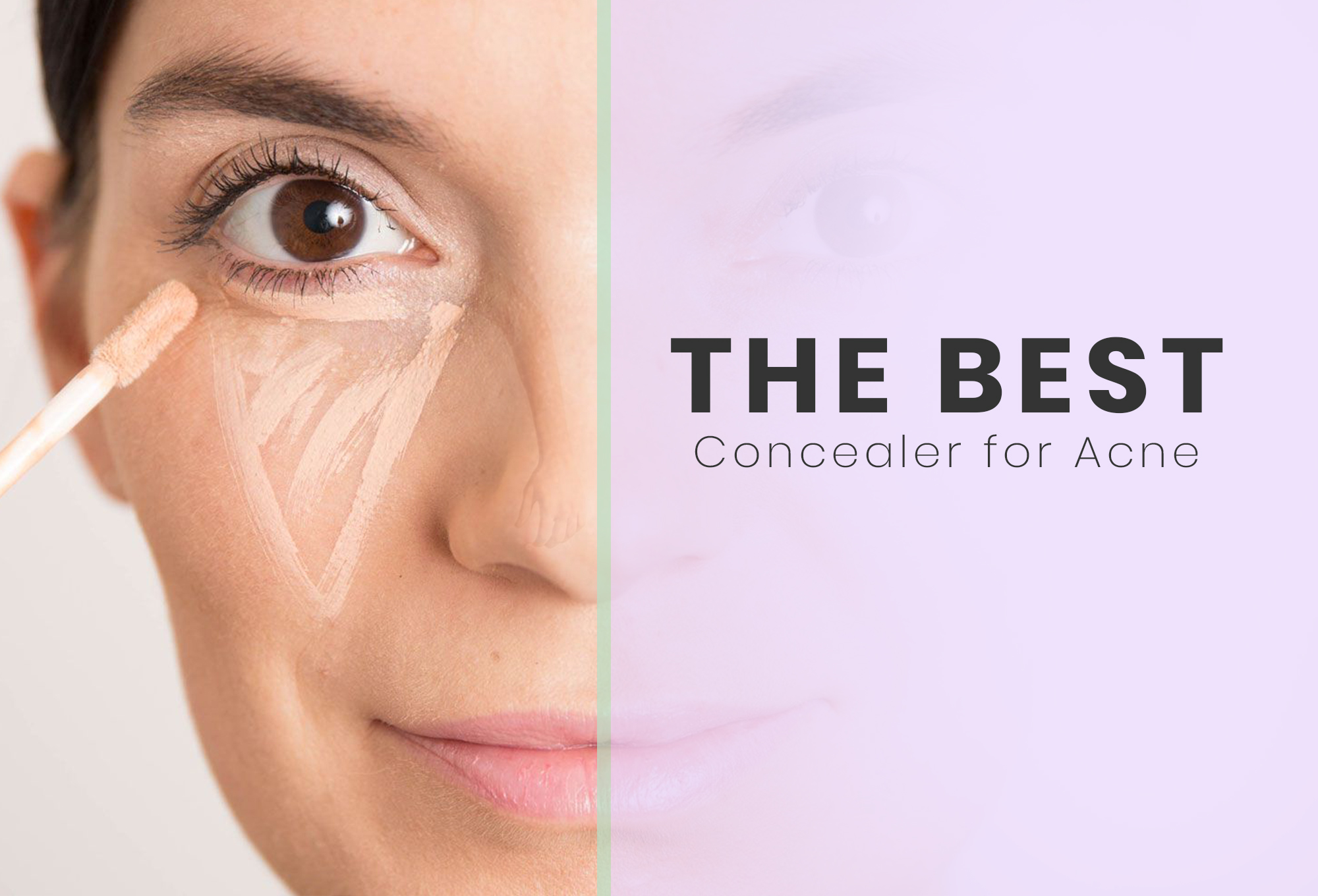 Best Concealers For Acne Scars – Our Top 10 photo
